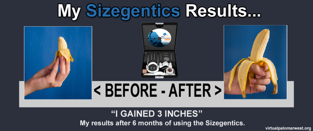sizegenetics before and after